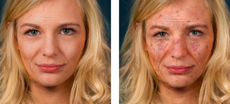Zo zie je er over 25 jaar zonder zonnebrand